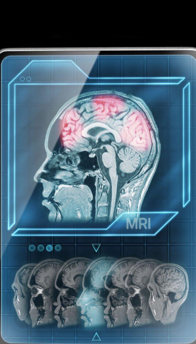 Neurociencias: el futuro de la psicología